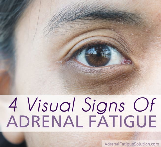 Adrenal fatigue and dark circles under the eyes
